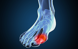 Gout Foot Injury